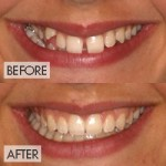 Comprehensive Treatment - crossbite and spacing