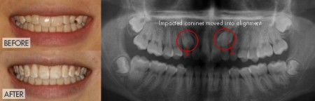 Adult Treatment - impacted canines